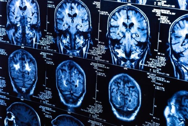 Что такое рак головного мозга