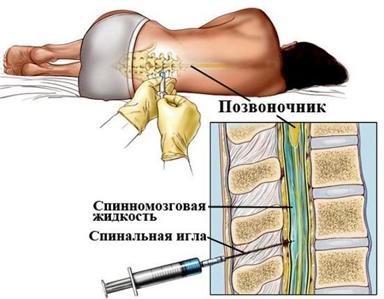 Пункция спинного мозга для диагностики менингита