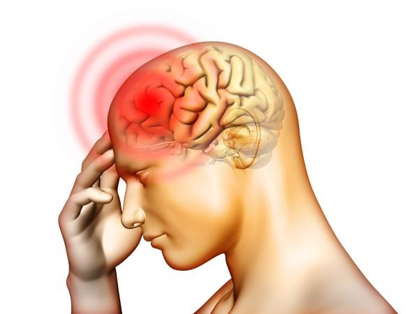 Головная боль в верхней части головы