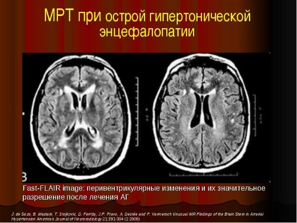 МРТ при энцефалопатии
