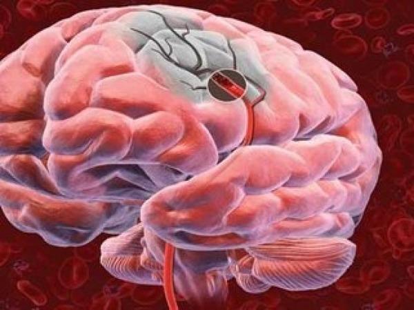 Мозговое кровотечение