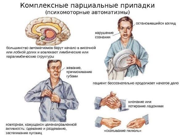 Психомоторный приступ