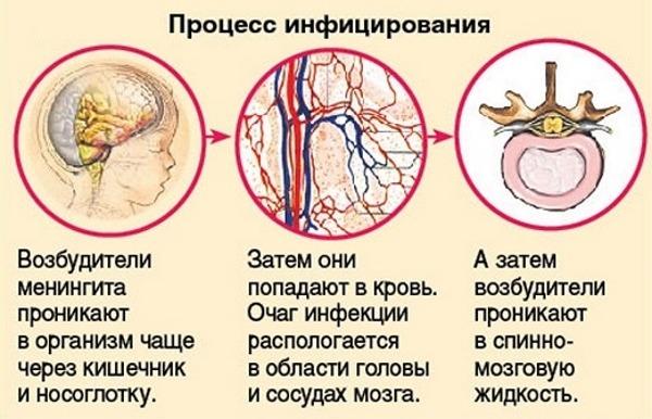 Развитие менингита