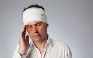 Какие медицинские препараты принимать от сотрясения мозга