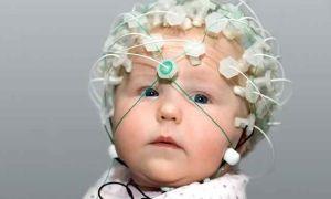 Что нужно знать об электроэнцефалографии у детей