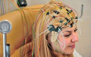Для чего делают энцефалограмму головного мозга