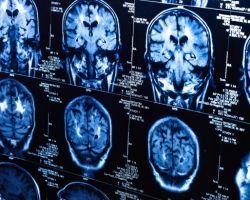 Основные симптомы и признаки рака головного мозга