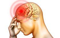 Причины головной боли в верхней части головы