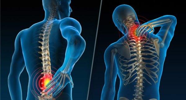 При остеохондрозе страдают шейный и поясничный отделы позвоночника