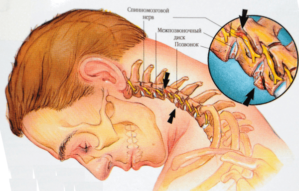 Миогелоз шейного отдела позвоночника