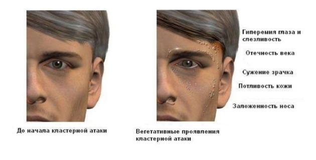 Симптомы кластерных болей