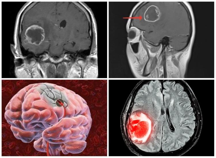 Раковые опухоли мозга