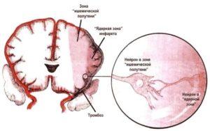 очаги хронической ишемии