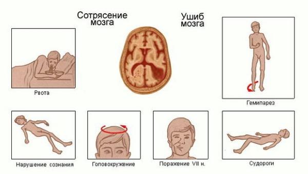Симптомы сотрясения