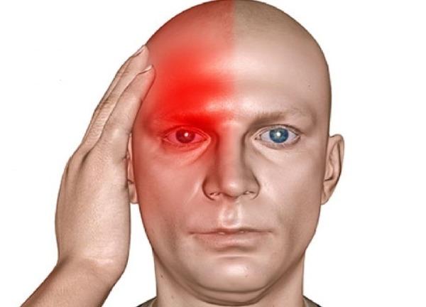 боль с правой стороны головы