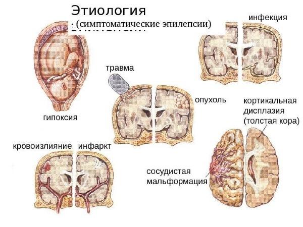 Причины развития заболевания