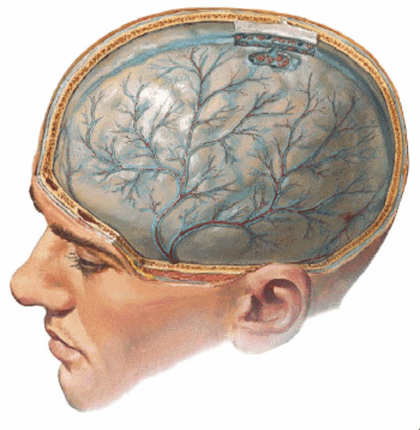 Паразитивный менингит