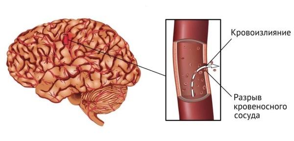 диета после геморрагического инсульта искусственной кожи замши