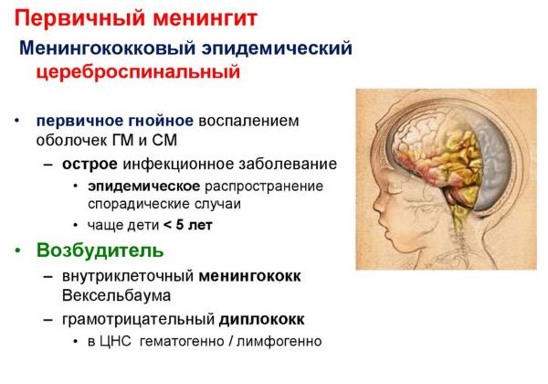 Первичный менингит