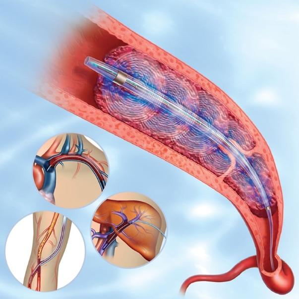 Тромболизис